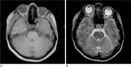 JKSR :: Journal of the Korean Society of Radiology
