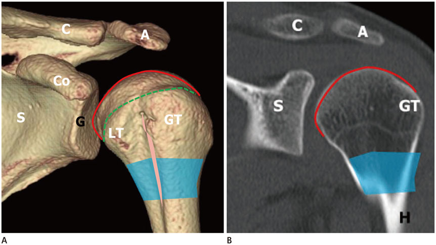 A Comprehensive Review of Shoulder CT Morphometry: What Surgeons ...